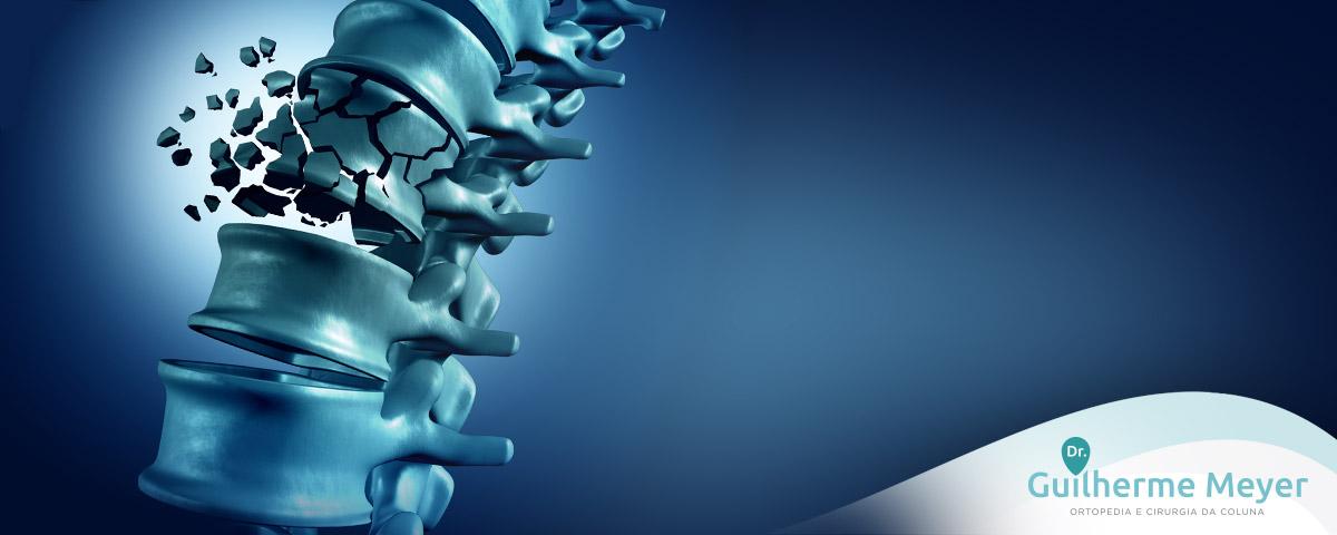 colu_osteoporose